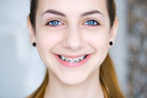 Braces, Straighter Smile, Traditional Braces